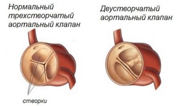 Врожденный порок аортального клапана