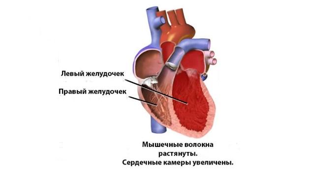 Расширение полости сердца