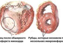 Постинфарктный фиброз