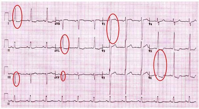 Как проявляется дистрофия левого желудочка, ее причины и лечение