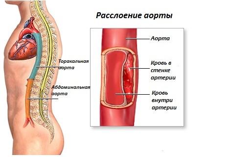 Расслаивающаяся аневризма аорты