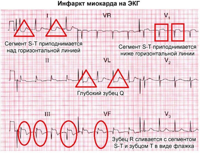 Острый инфаркт миокарда на ЭКГ