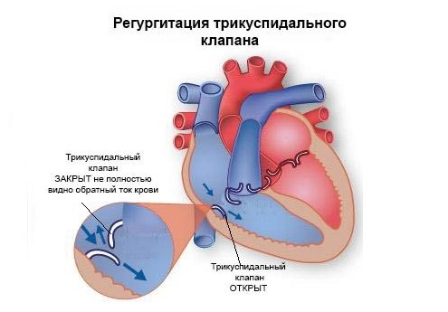 Регургитация трикуспидального клапана