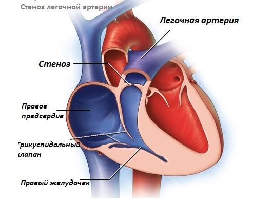 Стеноз клапана легочной артерии