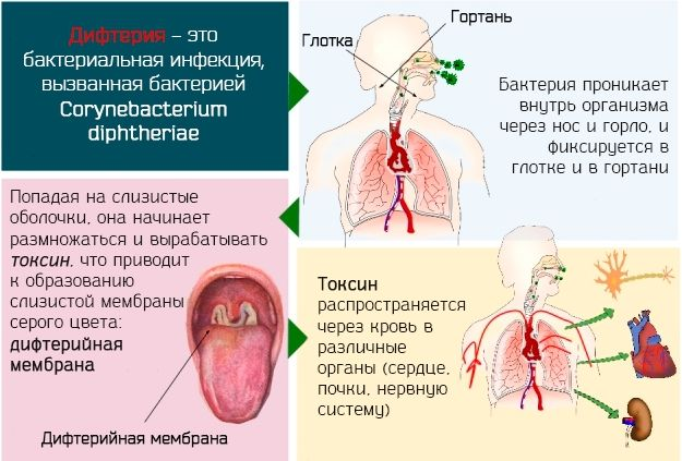 Действие токсина при дифтерии