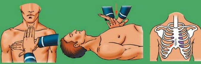 Как проводится первая медицинская помощь при остановке сердца