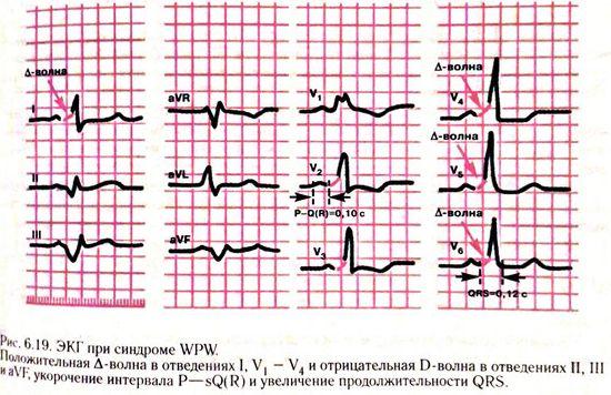 Синдром WPW на ЭКГ