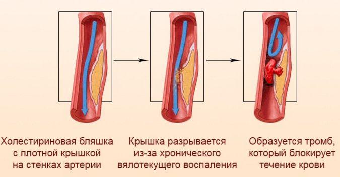 Механизм развития сердечного приступа