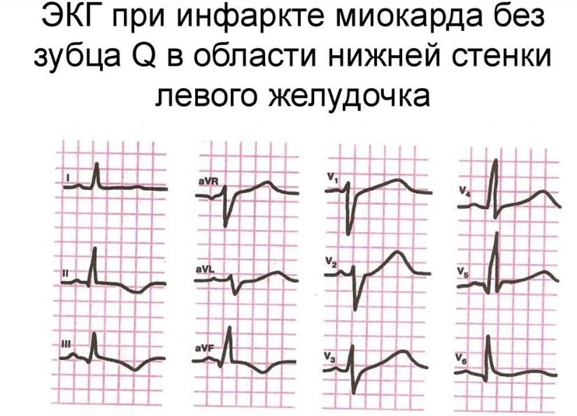 Инфаркт без зубца Q на ЭКГ