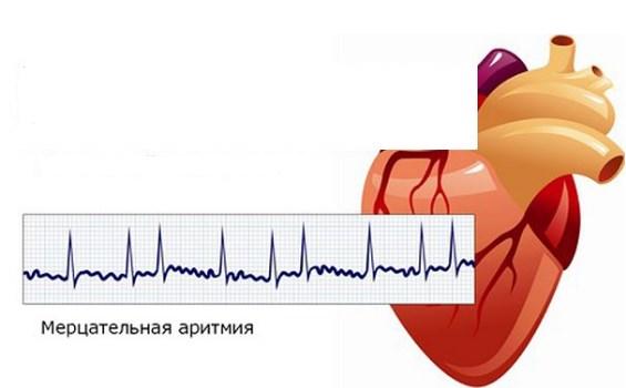 Аритмия как осложнение