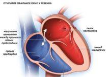 Чем опасно открытое овальное окно в сердце у ребенка