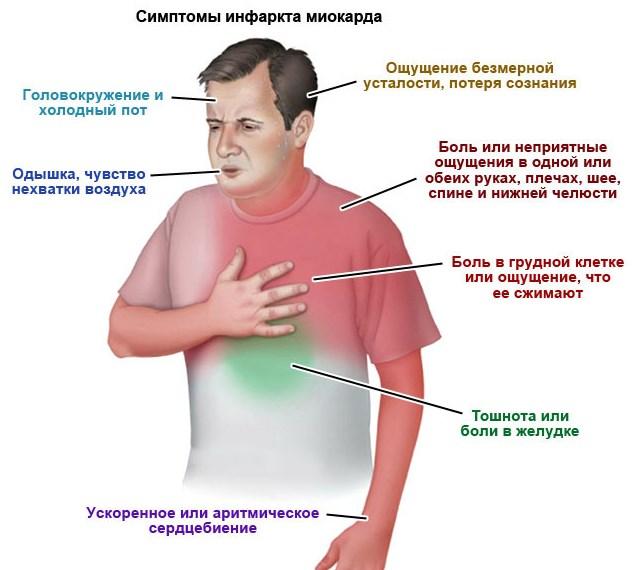 Как распознать микроинфаркт у мужчин, его первые признаки и основные симптомы