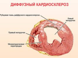 Кардиосклероз сердца