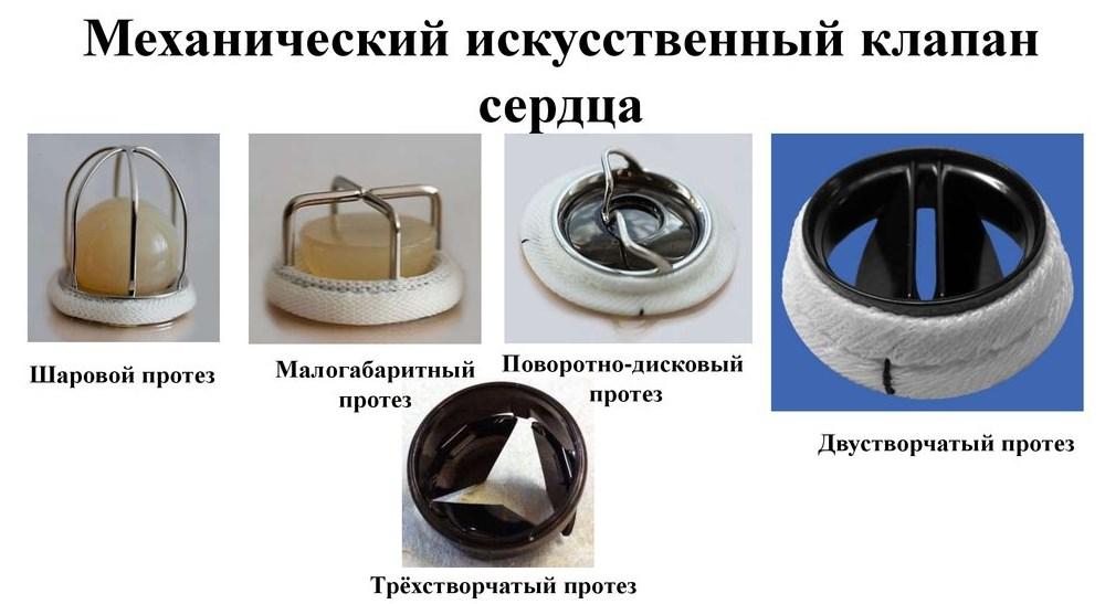 Механические протезы клапана
