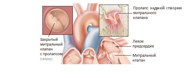 Пролапс задней створки митрального клапана