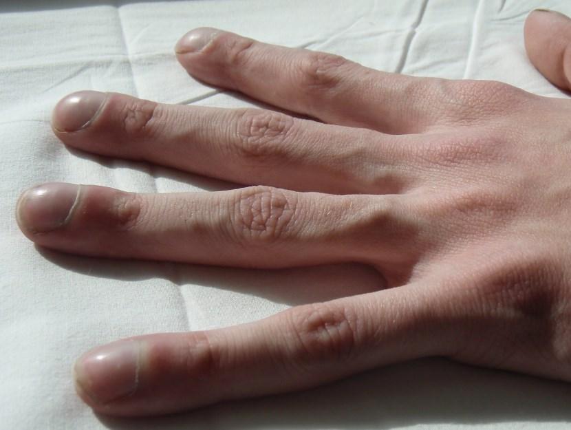 Деформация пальцев рук по типу барабанных палочек